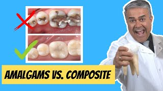 Watch THIS Before Getting Your Next FILLINGS