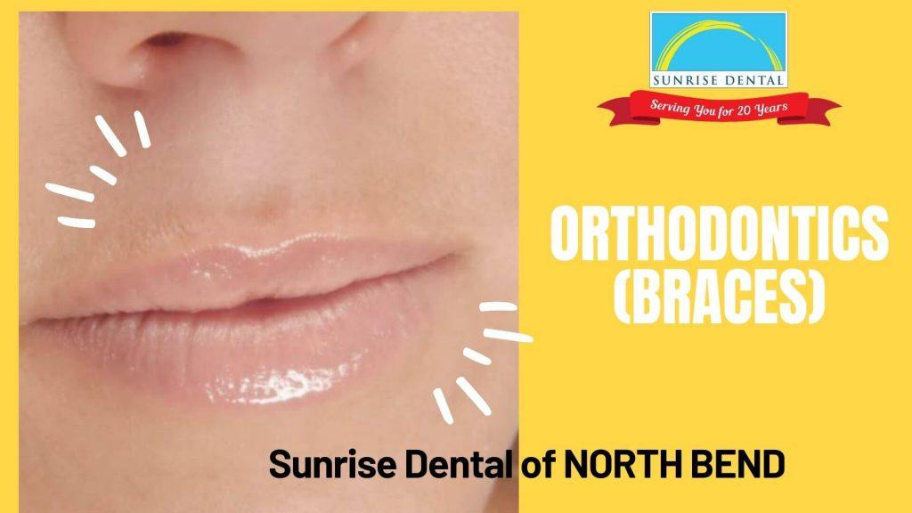 Sunrise Dental Orthodontics